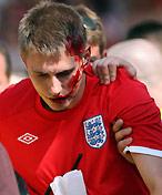 英国球迷血流不止