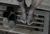 病残的腿脚从小腿以下都是紫黑色