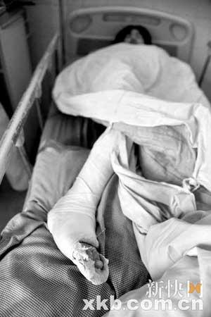 一名学生腿部骨折,正接受治疗。